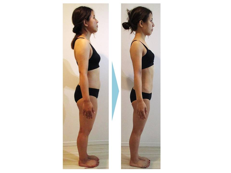 ビフォー‗むくみ‗お腹‗二の腕‗背中‗脂肪3