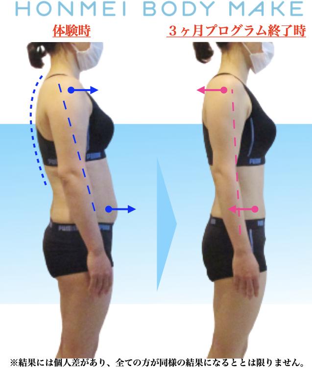 大森 姿勢改善 巻肩 反り腰 二の腕痩せ 細く